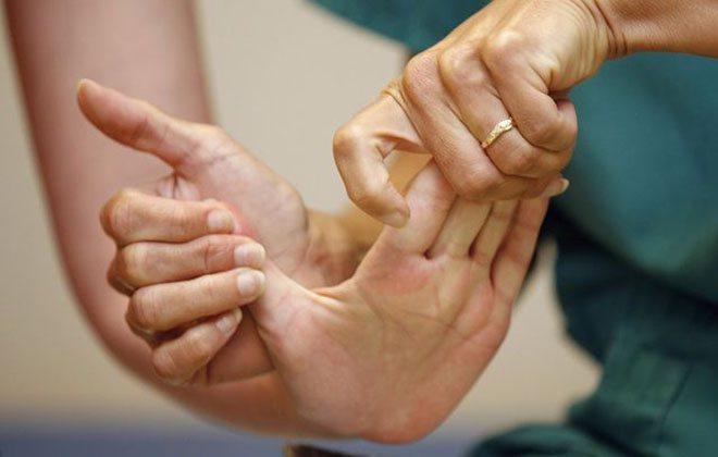 Чому болить паралізована рука після інсульту і що робити