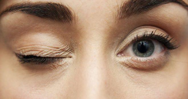 Чому смікається очей, як віявіті и усунуті причину міокіміі?