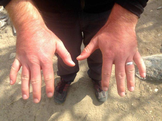 Чому набрякають пальці на руках: причини, можливі захворювання, лікування