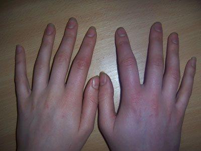 Чому набрякають руки - 12 причин. Що робити щоб зняти набряки