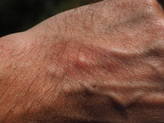 Чому з'явилася папілома на руці?