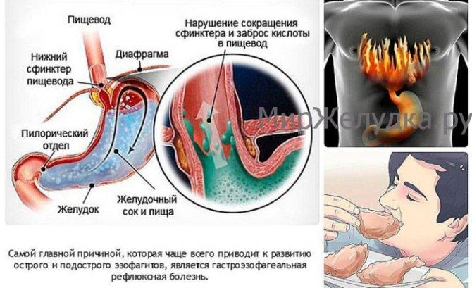 Чому виникає печія?