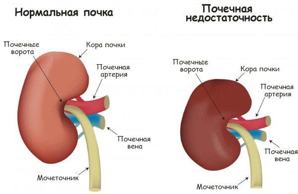 Нирки у людини: розташування, де знаходяться, будова, функції, як працюють, хвороби