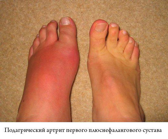 подагричний артрит першого плюснефалангового суглоба