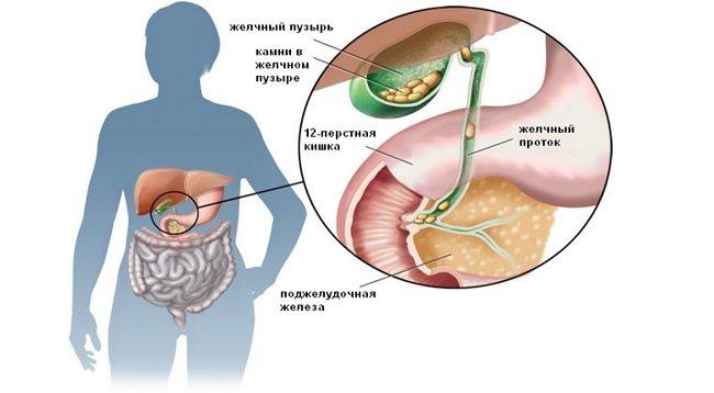 Підшлункова залоза і жовчний міхур