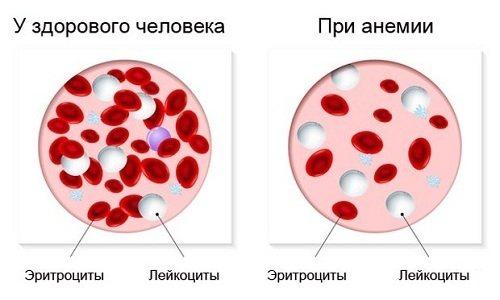 Показання до виконання хірургічного втручання - анемія