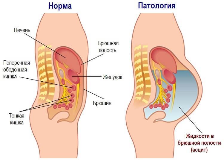 Показання до застосування Верошпирон