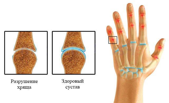 полиостеоартроз суглобів пальців кісті