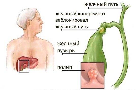 Поліпоз жовчного міхура