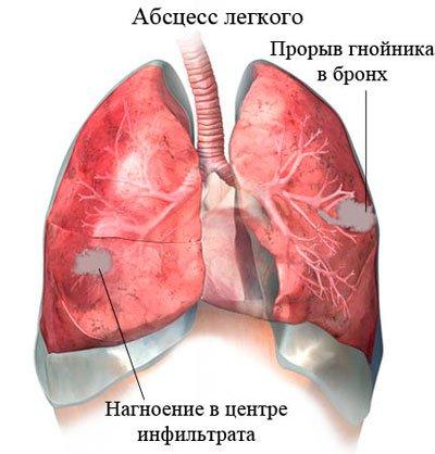 Полісегментарна пневмонія: що це таке?