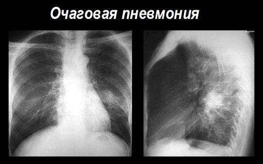 полісегментарна пневмонія