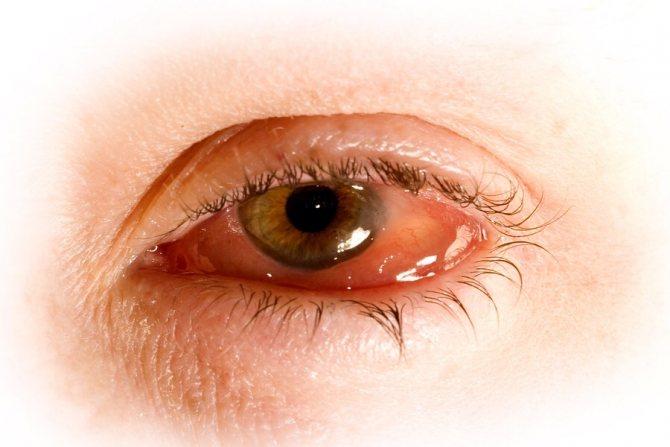 Ураження очей при хламідіозі