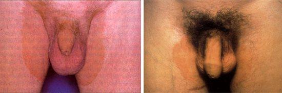 ураження шкіри в паху