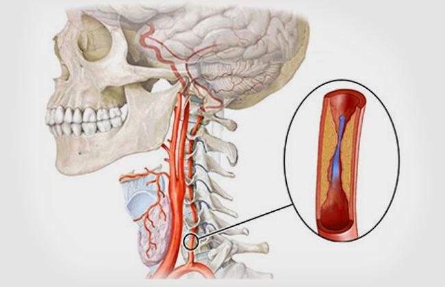Поразка лівої артерії