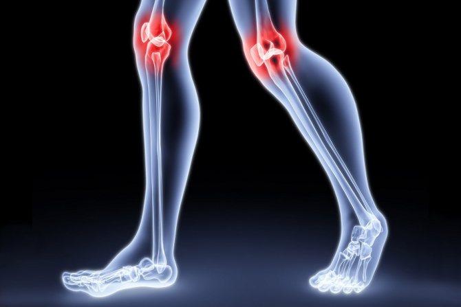 ураження суглобів при микоплазме у жінок