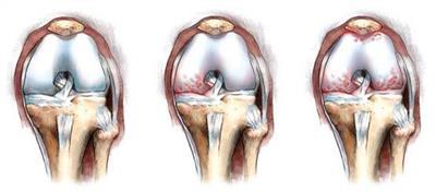 Поразка суглобів при склеродермії