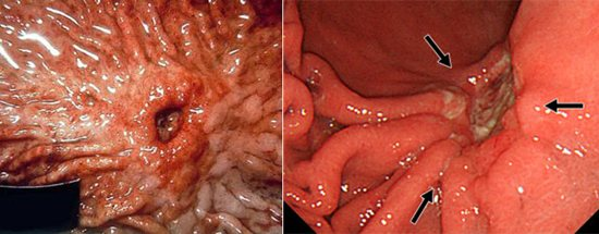 ураження желедка і 12-палої кишки