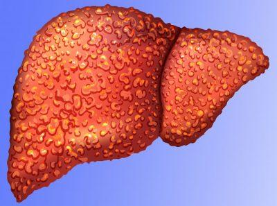 уражена печінку