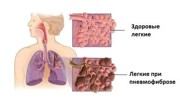 уражені альвеоли