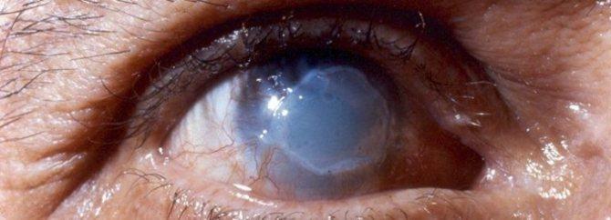 Наслідки хімічного опіку очі і лікування