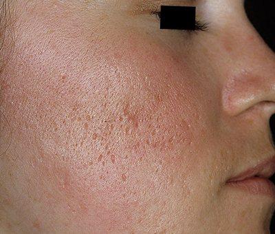 наслідки прищів на обличчі