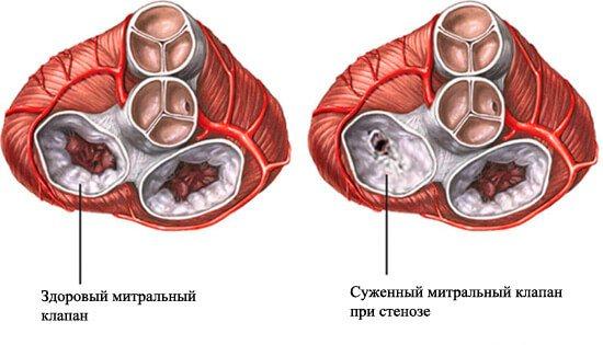 ушкодження мітрального клапана