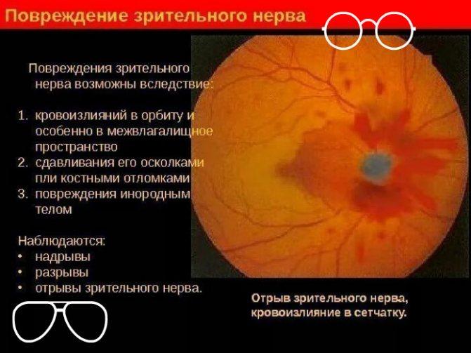 Пошкодження зорового нерва