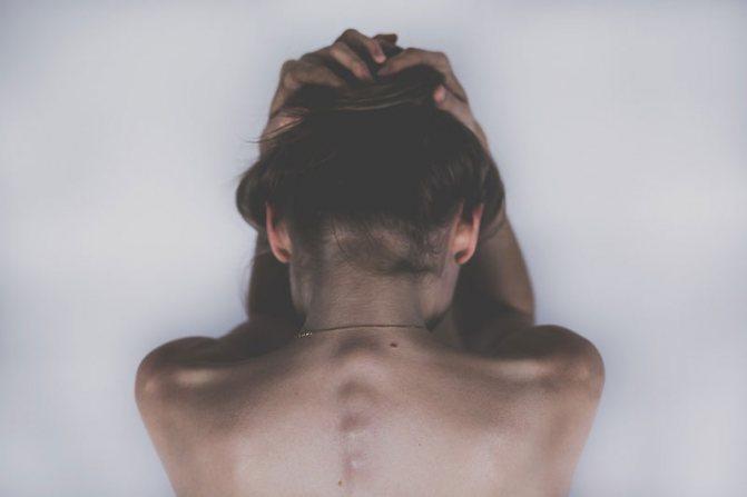 підвищений кортизол симптоми
