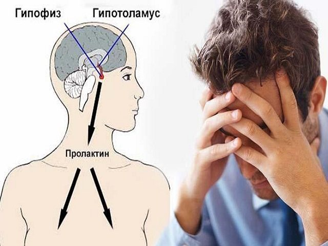 підвіщеній пролактин у чоловіків