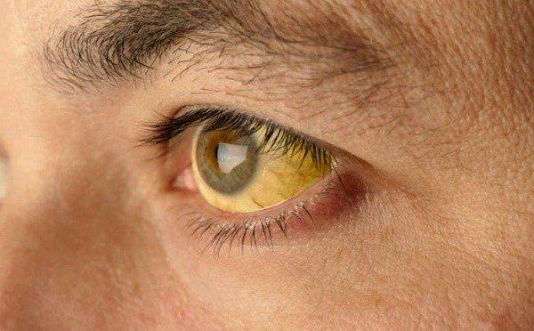 пожовтіння склер очі