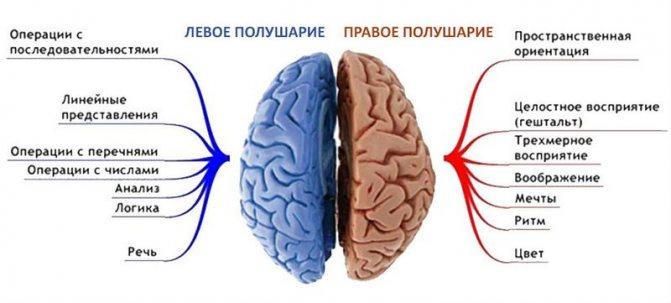 Правобічний інсульт гемипарез - фото