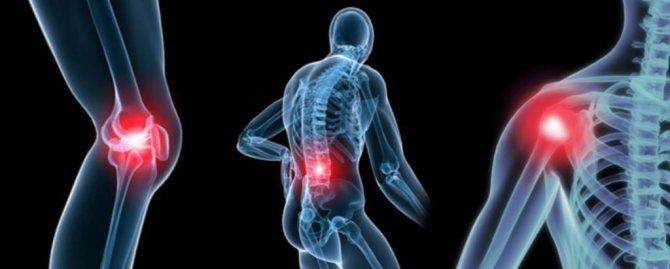 Препарат застосовують в лікуванні суглобів