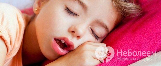При довгостроково протікає аденоидите у дитини формується так званні аденоїдні особа