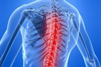 При остеохондрозі могут з'явитися болі в грудній клітці