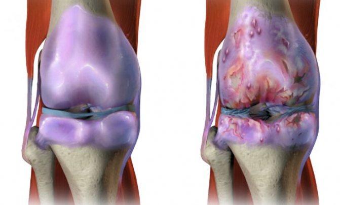 При патології суглоб змінює свій зовнішній вигляд