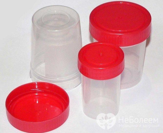 При зборі сечі на аналіз бажано використовувати спеціальні одноразові контейнери
