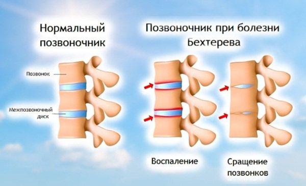 Причини болю в п'яті, якщо боляче наступати вранці, при ходьбі. Лікування народними засобами, препарати