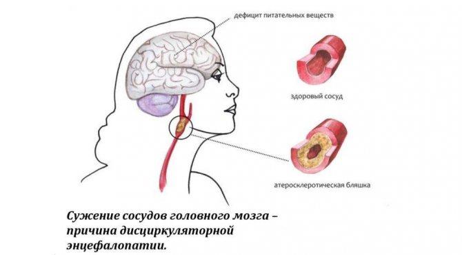 Причини дисциркуляторної енцефалопатії
