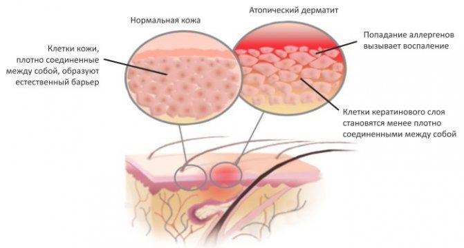 Причини і лікування свербежу шкіри тіла з почервонінням, висипанням і без. Препарати в таблетках, мазі, народні засоби