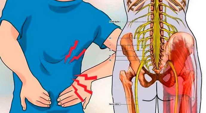 Причини і симптоматика проблем з сідничного нерва