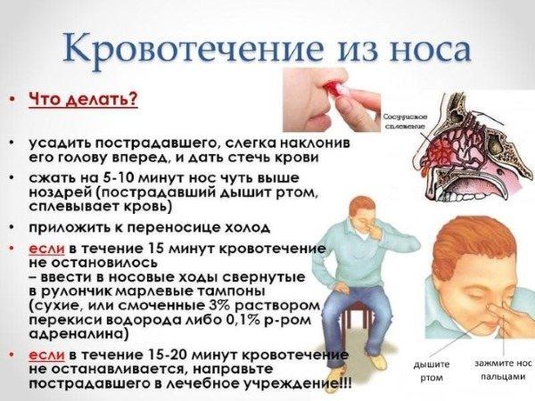Причини крови з носа у дорослих: вранці, при нормальному стані, часто або Раптовий.  Перша допомога и лікування патології