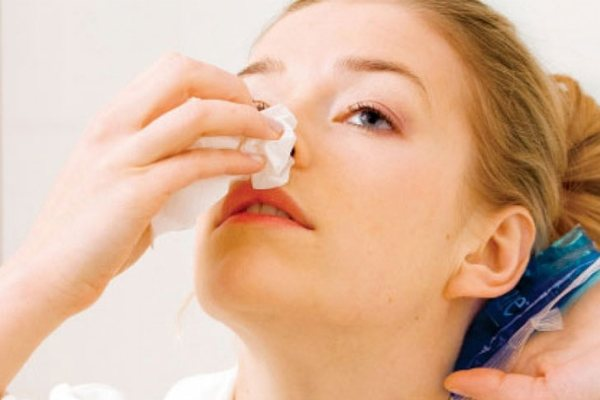 причини кровотечі з носа у жінок