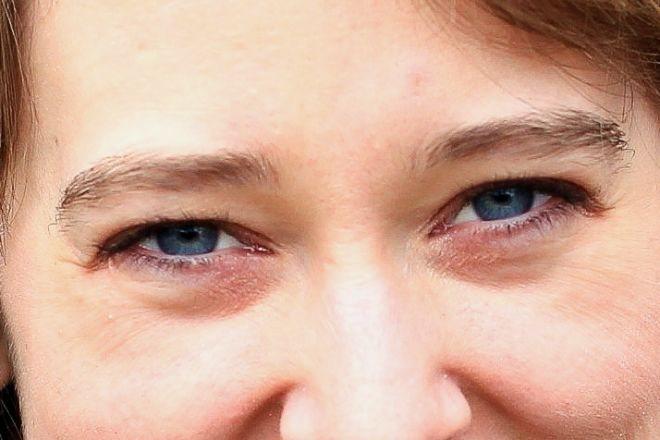 Причини мішків під очима у жінок