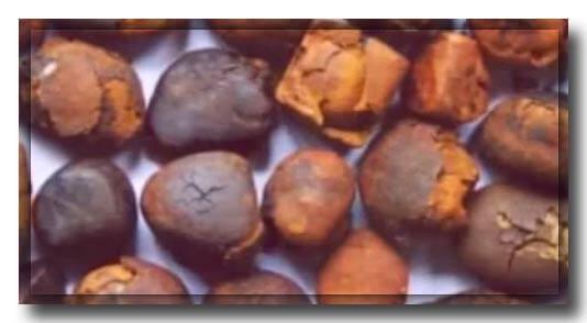 Причини Утворення каменів в жовчному міхурі