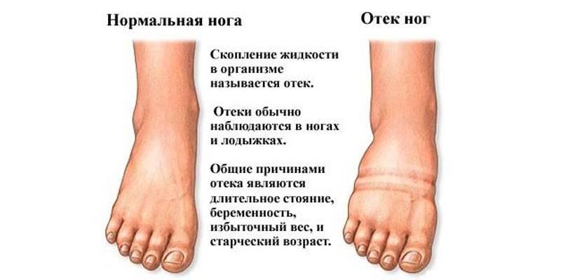 Причини набряків ніг