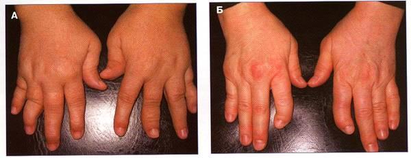 Причини поразки суглобів при псоріазі псоріатичний артрит. методи лікування