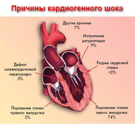 причини розвитку кардіогенного шоку
