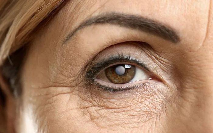 Причини розвитку катаракти
