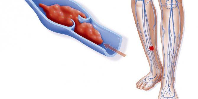 причини розвитку тромбозу