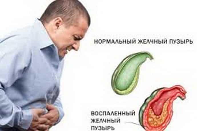Причини збільшення жовчного міхура і лікування захворювання